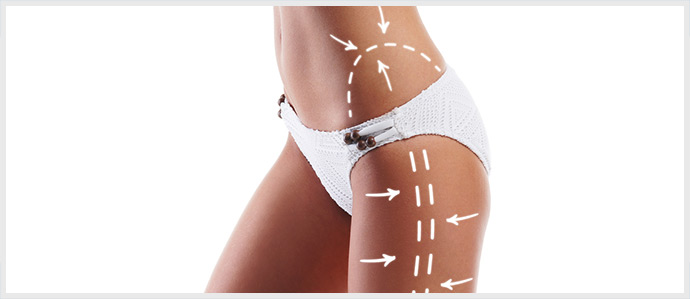Liposuction Areas of Fat Reduction