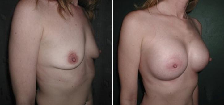 Breast Enlargement Patient1-2