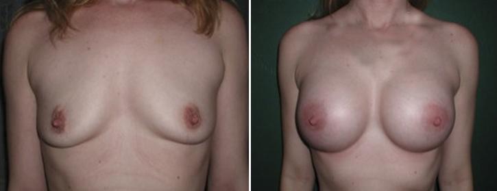 Breast Enlargement Patient1