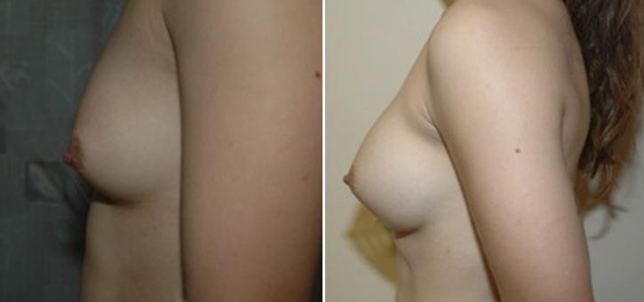Breast Enlargement Patient10-2