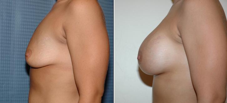 Breast Enlargement Patient11-2