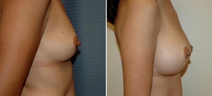 Breast Enlargement Patient13-2