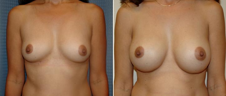 Breast Enlargement Patient13