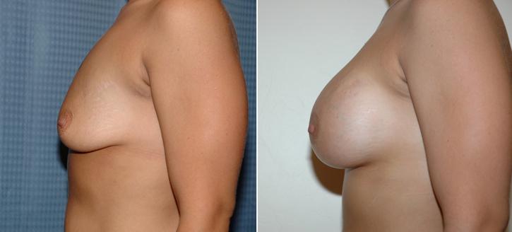 Breast Enlargement Patient14-2
