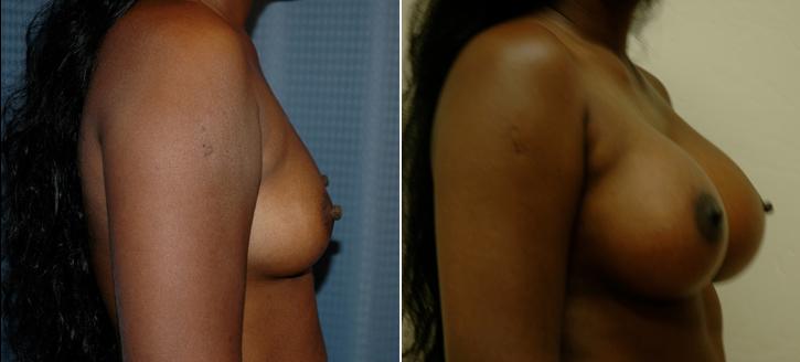 Breast Enlargement Patient15-2