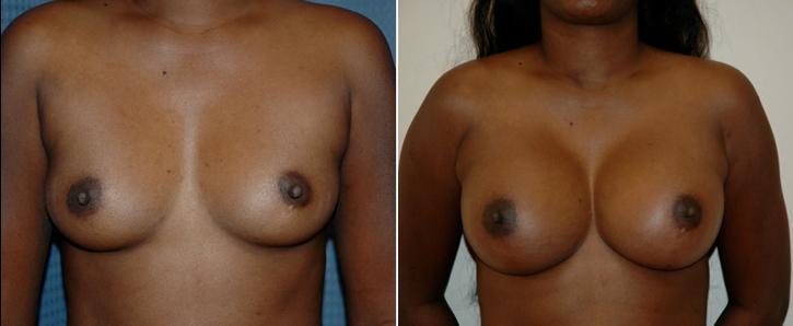 Breast Enlargement Patient15
