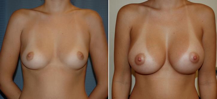 Breast Enlargement Patient16