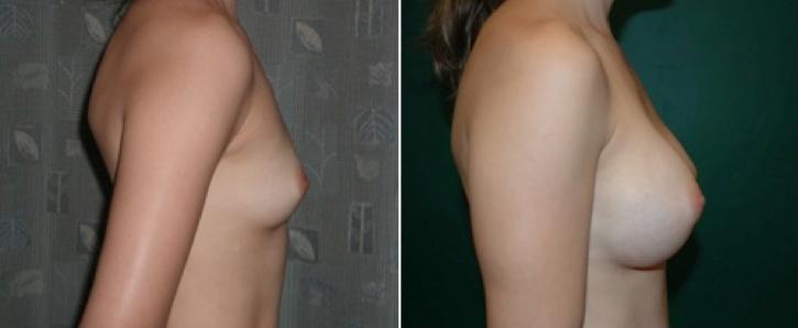 Breast Enlargement Patient17-2