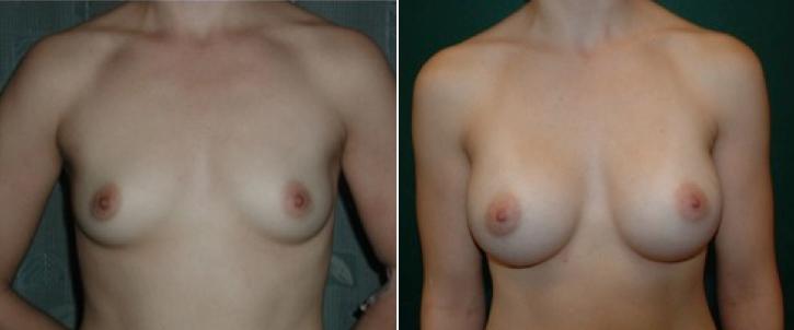 Breast Enlargement Patient17