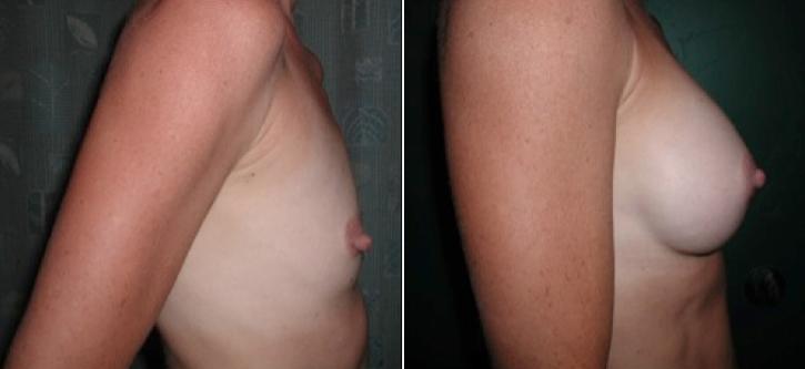 Breast Enlargement Patient18-2