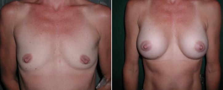 Breast Enlargement Patient18