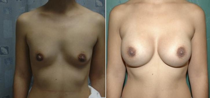 Breast Enlargement Patient2