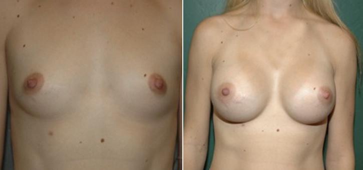 Breast Enlargement Patient3