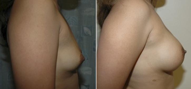 Breast Enlargement Patient4-2