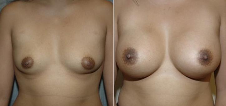 Breast Enlargement Patient4