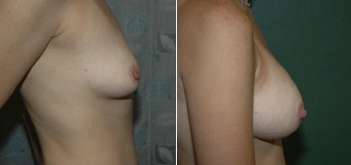 Breast Enlargement Patient5-2
