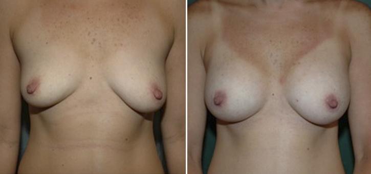 Breast Enlargement Patient5