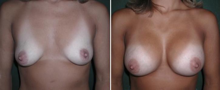 Breast Enlargement Patient6