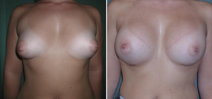 Breast Enlargement Patient8