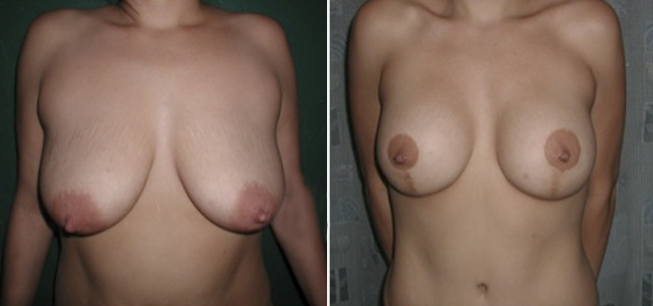 Breast Lift With Implants Patient1