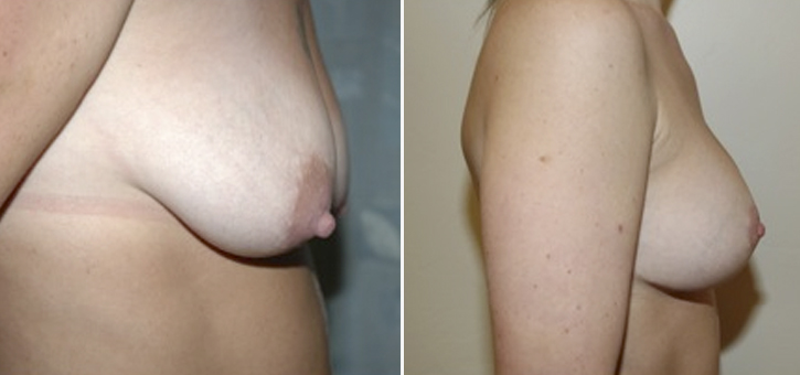 Breast Lift With Implants Patient2-2