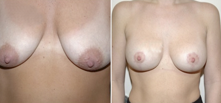 Breast Lift With Implants Patient2
