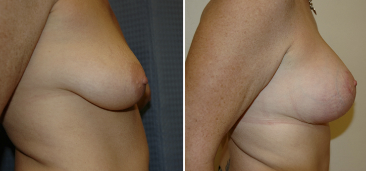 Breast Lift With Implants Patient3-2