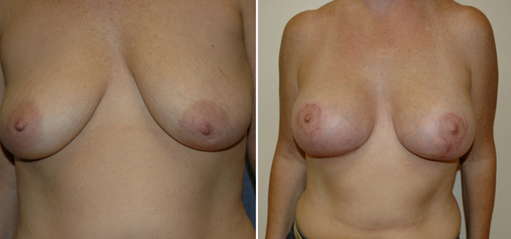 Breast Lift With Implants Patient3