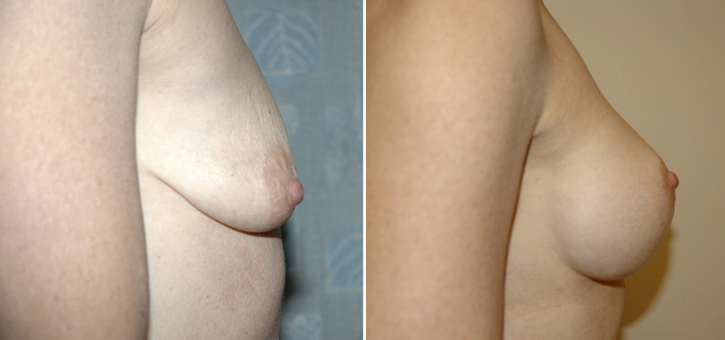 Breast Lift With Implants Patient4-2