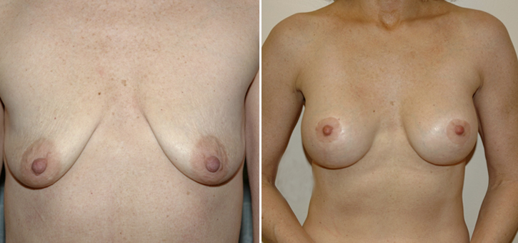 Breast Lift With Implants Patient4