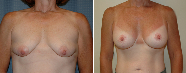 Breast Lift With Implants Patient5