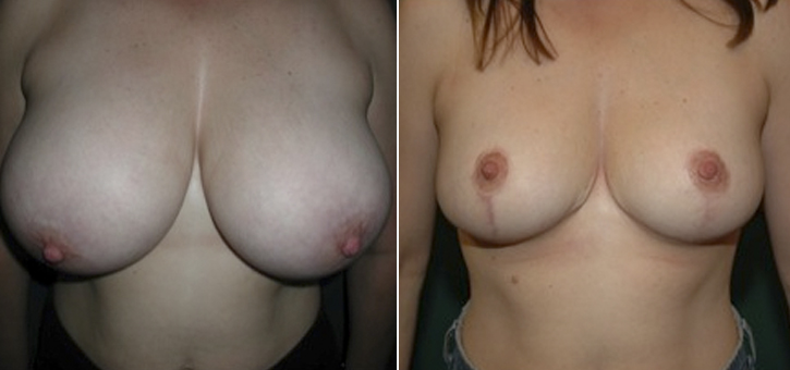 Breast Reduction Patient1
