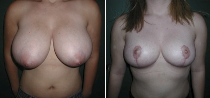 Breast Reduction Patient2