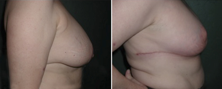 Breast Reduction Patient3-2