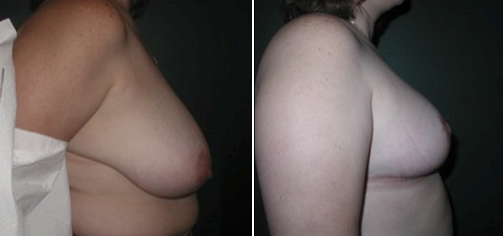 Breast Reduction Patient4-2