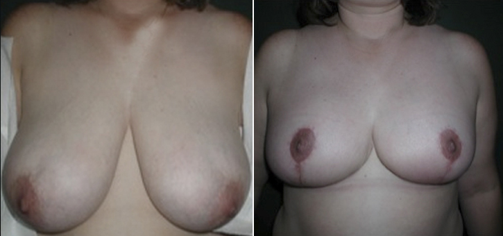 Breast Reduction Patient4