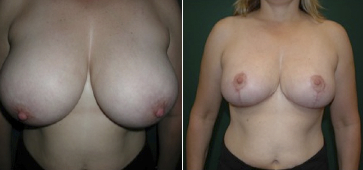 Breast Reduction Patient5