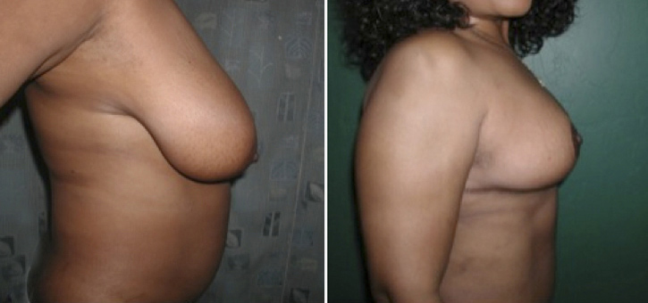 Breast Reduction Patient6-2