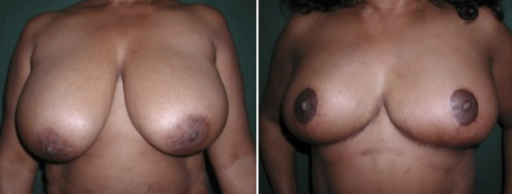 Breast Reduction Patient6