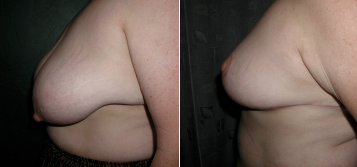 Breast Reduction Patient7-2