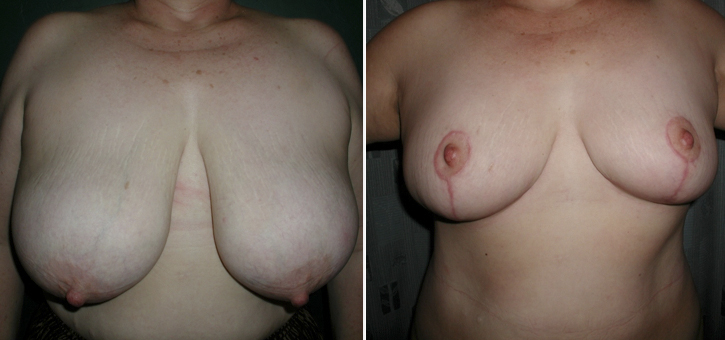 Breast Reduction Patient7