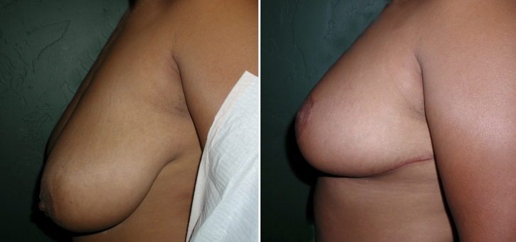 Breast Reduction Patient8-2