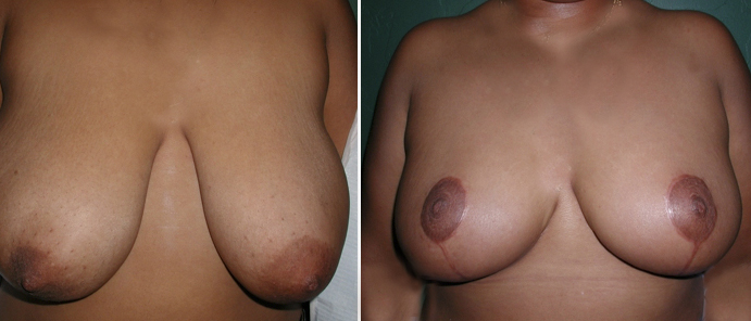 Breast Reduction Patient8