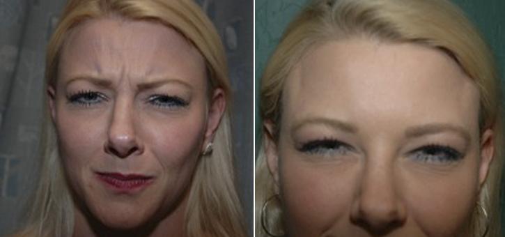 Botox Patient1-2