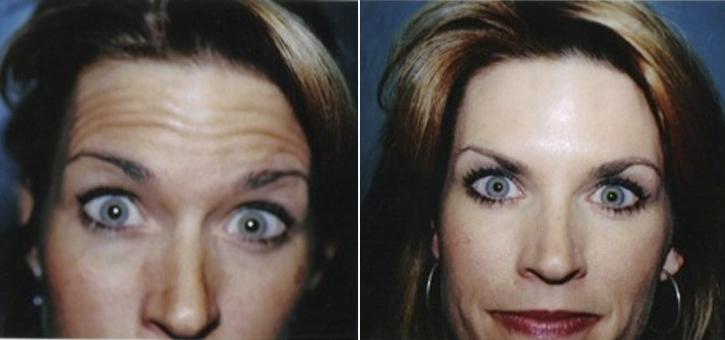 Botox Patient2-2