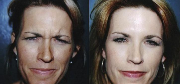 Botox Patient2