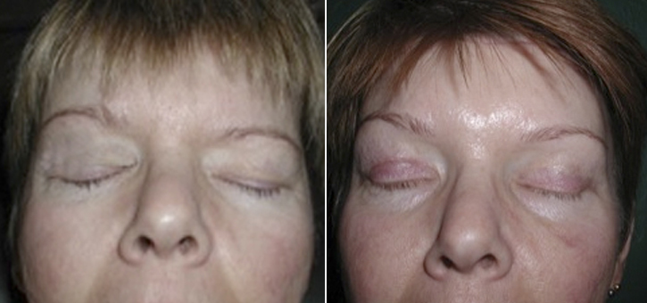 Eyelid Lift Patient1