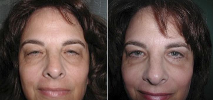 Eyelid Lift Patient2