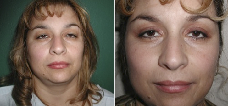 Eyelid Lift Patient3