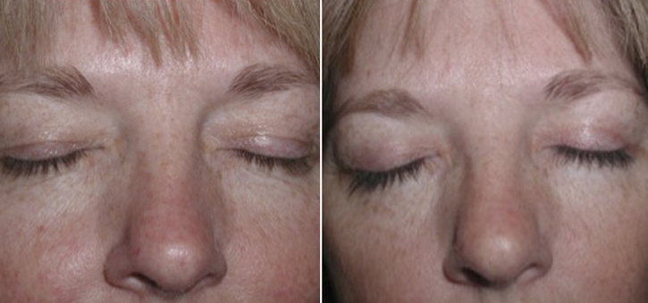 Eyelid Lift Patient4